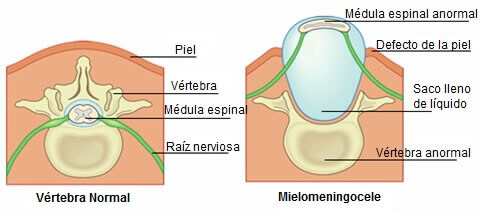 espina bífida 1