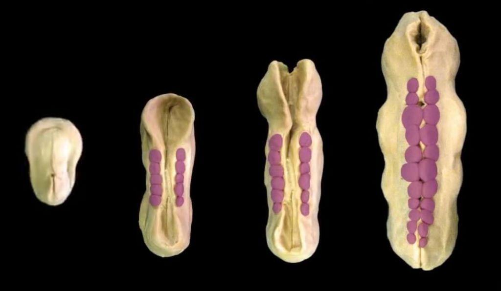 Espina bífida 4