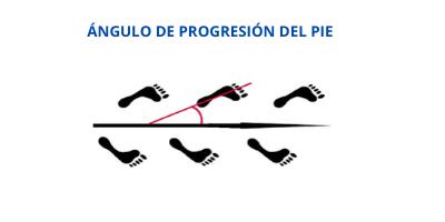 Angulo de progresión del pie